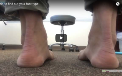 Flat feet or high arches ? Find out if they are a problem – 3 min video